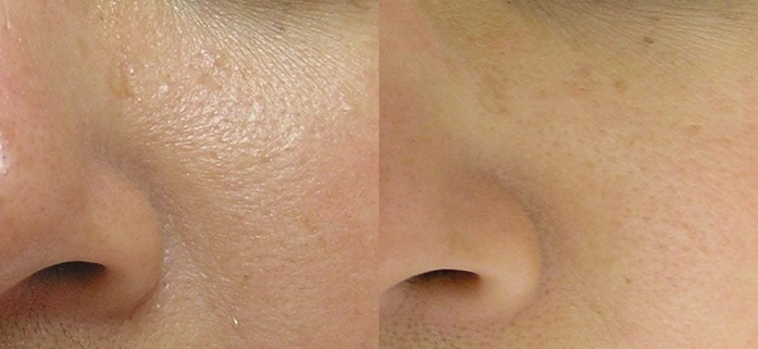 hydrafacial-before-after-6
